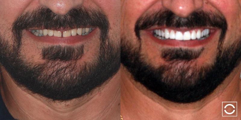 Lente de Contato Dental 1